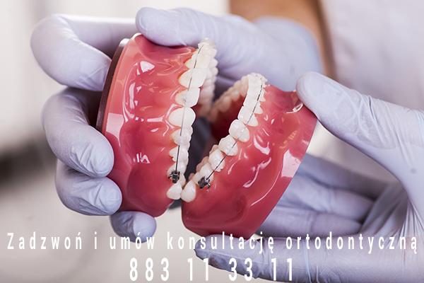 ortodontyczny aparat stały
