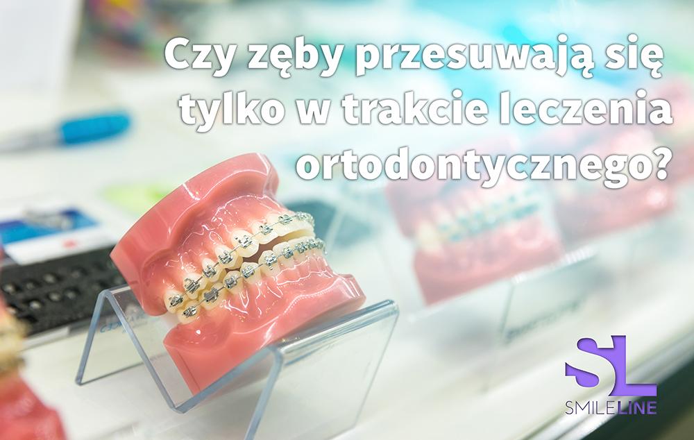 Zęby przesuwają się